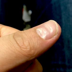 親指の爪の凹みの原因はストレス?睡眠が重要
