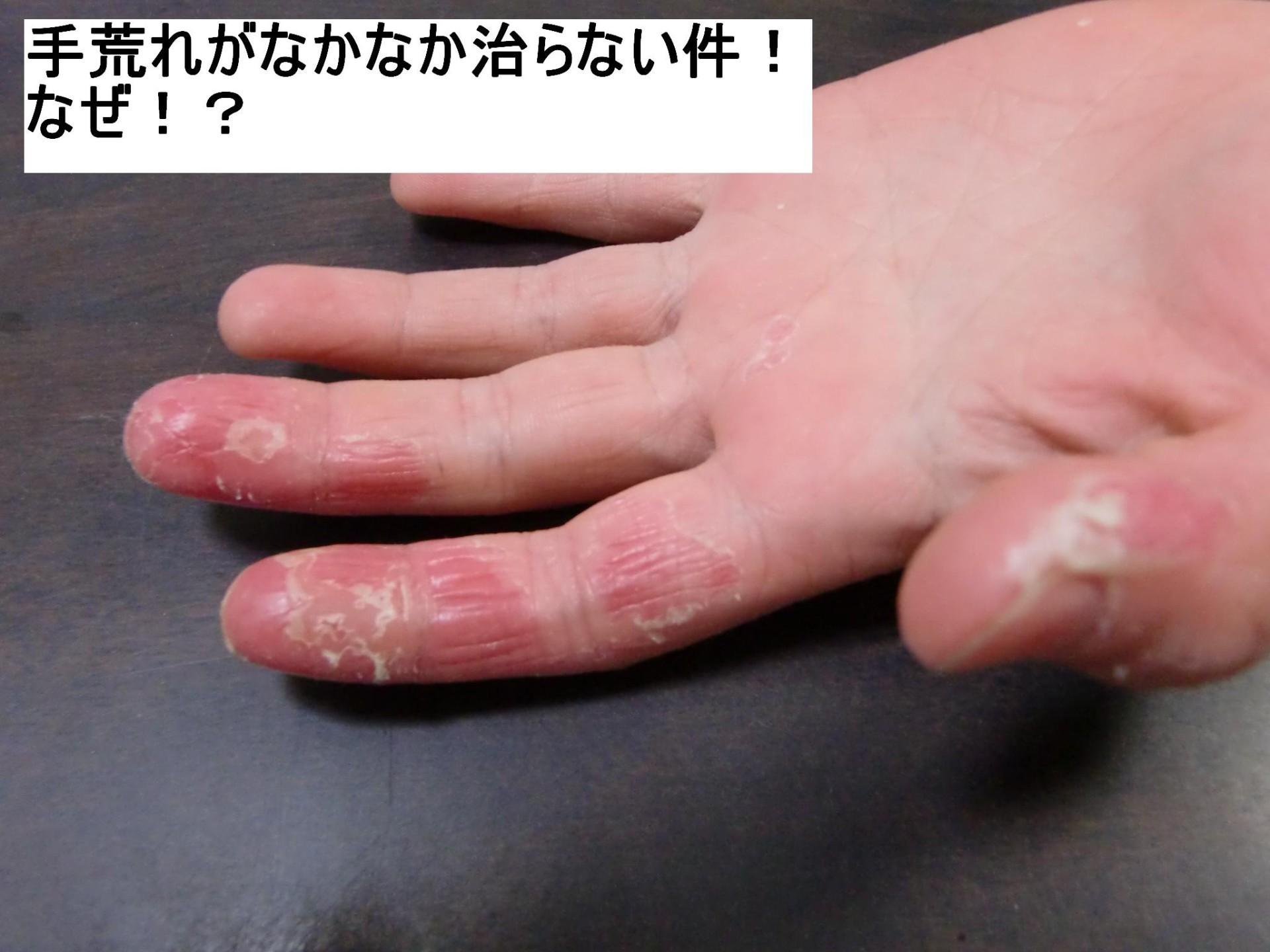 手荒れ、肌荒れの原因は免疫力の低下。不摂生とストレスに注意