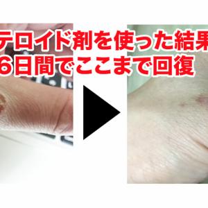 ステロイド軟膏オイラックスPZを使って6日で手荒れ修復!肌の経過を画像公開