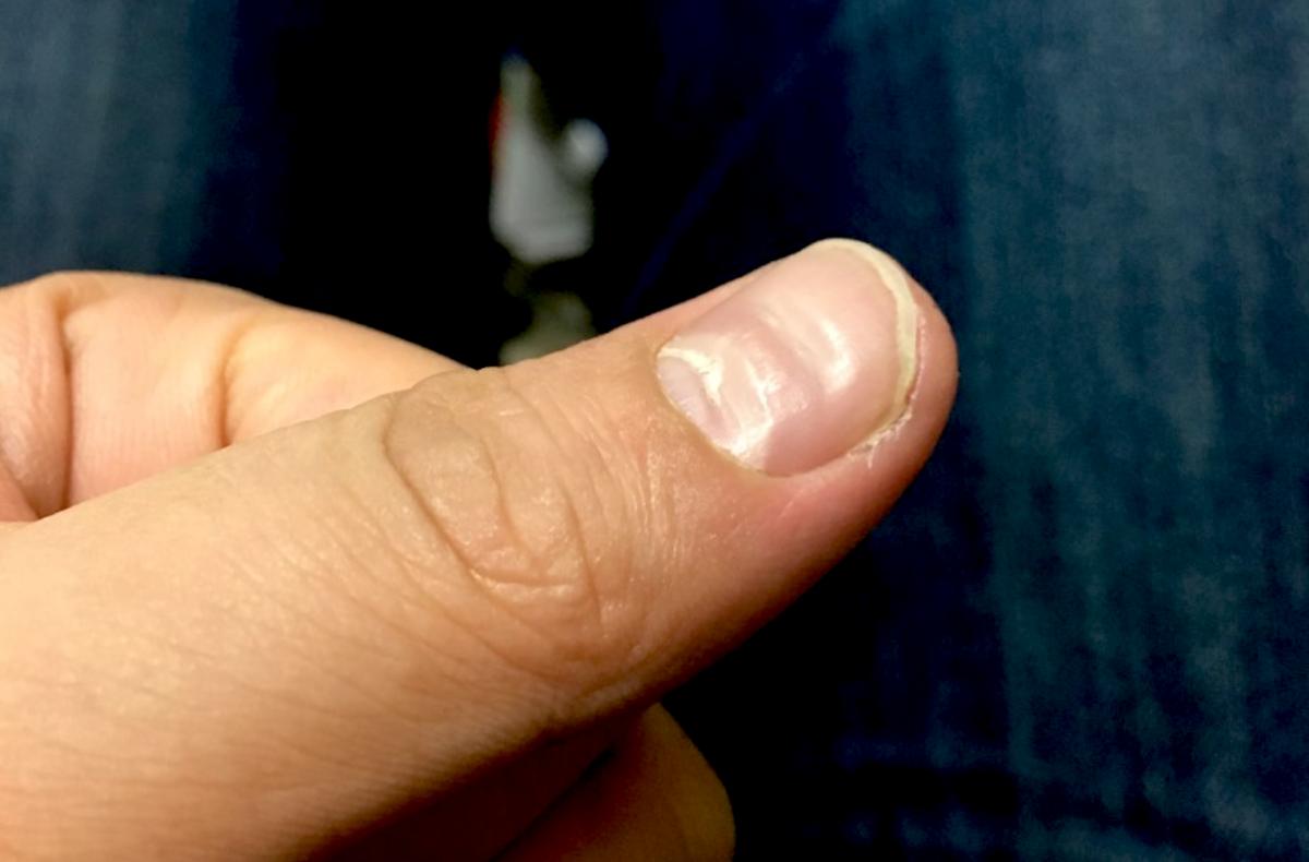 親指の爪の凹みの原因はストレス?睡眠不足を改善したら5ヶ月でキレイになった